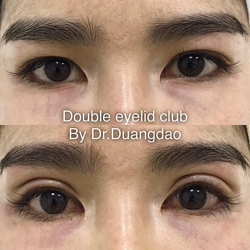 ทำตา 2 ชั้น ศัลยกรรม